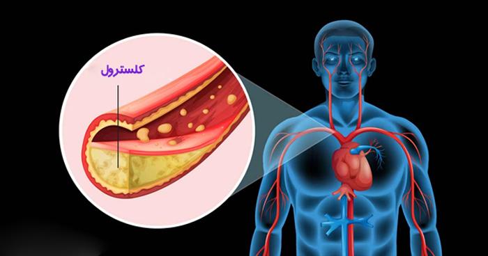 چگونه بدون مصرف دارو چربی خون را کنترل کنیم؟