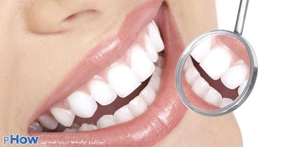 چگونه دندان های سفید و براقی داشته باشیم ؟